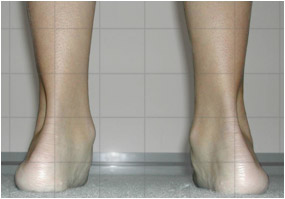 Pronation of Ankles
