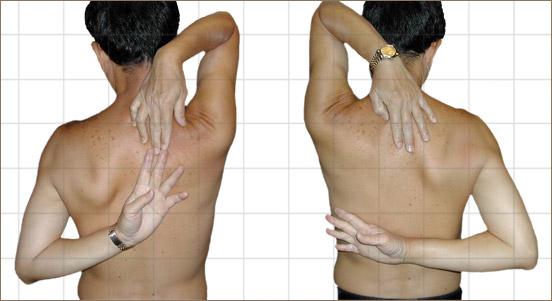 Apleys scratch test