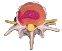 Top view of an intervertebral disc model