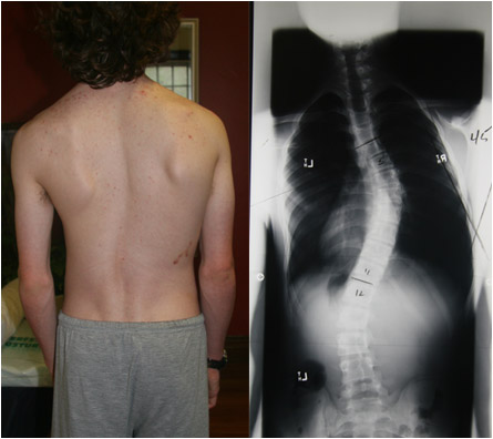 scoliosis example
